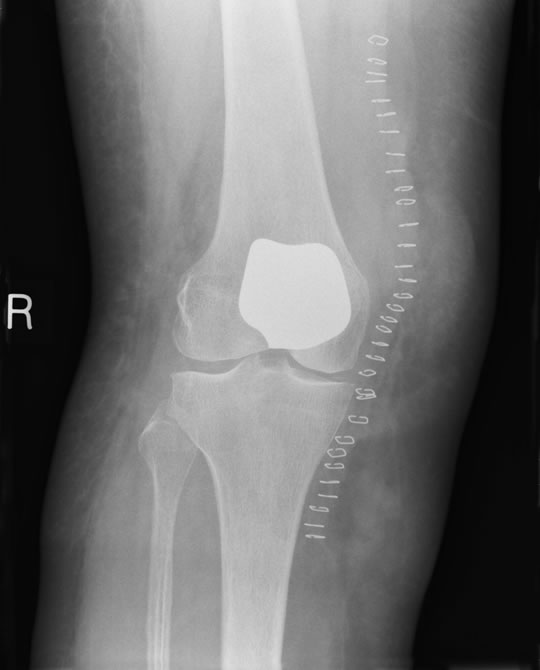 Patello-femoral Knee Replacement